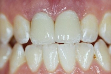 dental-crowns-2